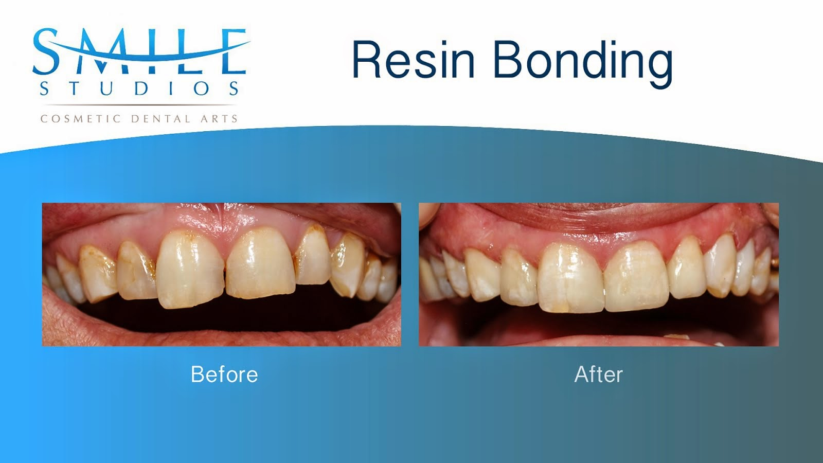 Resin Fillings
