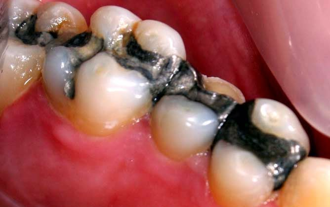 The Diseases Connected to Mercury Fillings
