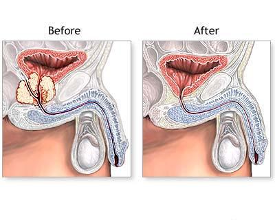 adenom de prostata complicatii
