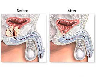 Informatii medicale despre adenomul de prostata