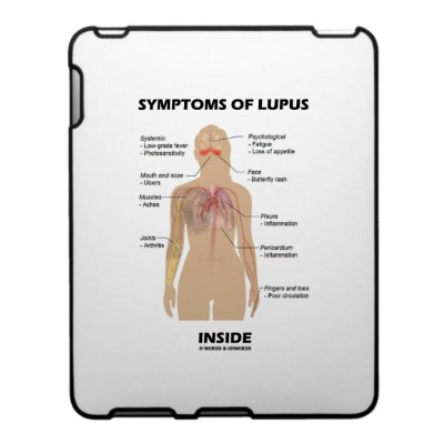 disease types of lupus essay Summary of a presentation to the sle workshop at hss  treatments and the  complex interactions lupus medications have with the disease, as well as the.