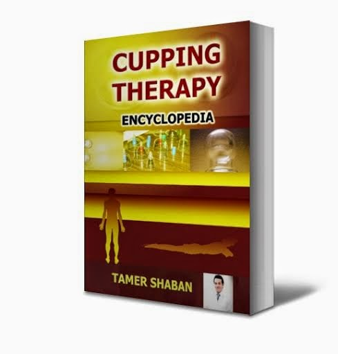 Cupping Therapy Encyclopedia