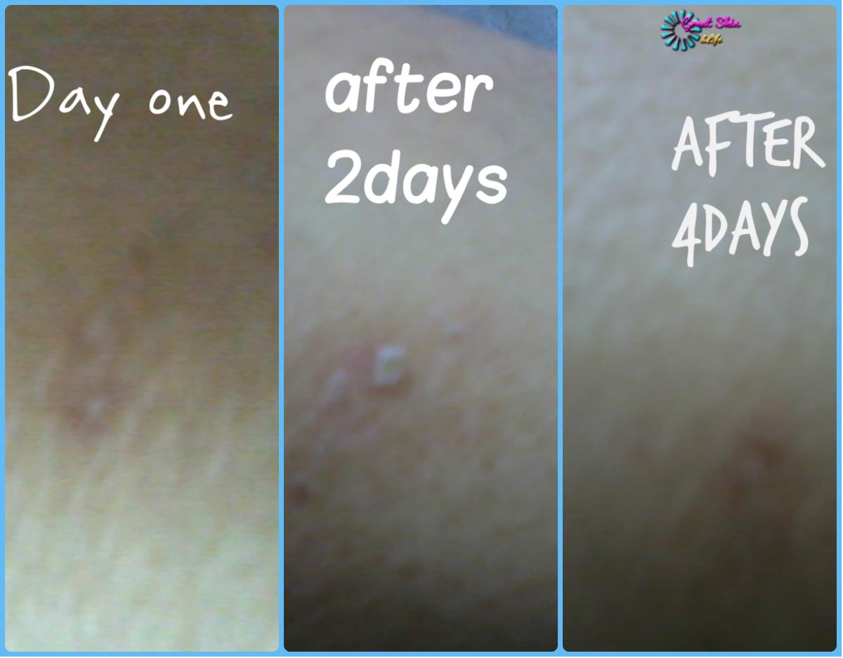 cicatrice varicelle peau mate visage