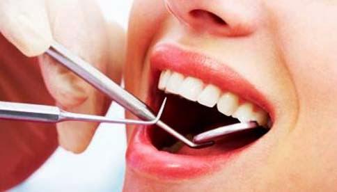 Menghilangkan Plak Atau Karang Gigi