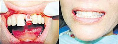 Harga implant gigi palsu untuk memasang implan gigi