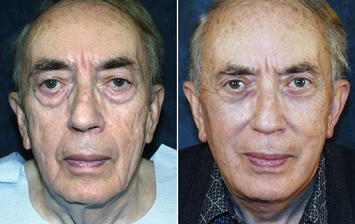 Guys You Too Can Appear To Be Younger By Drinking From The Fountain Of Youth Using Face Exercises Non Surgical Facelifts Have Been Gotten Men And