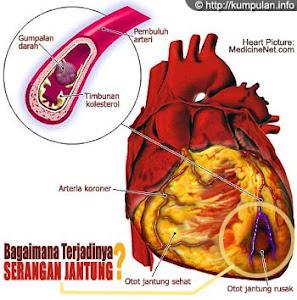 Paket penyembuhan Jantung, Kolesterol, Diabetes, Sendi, Darah Tinggi dll