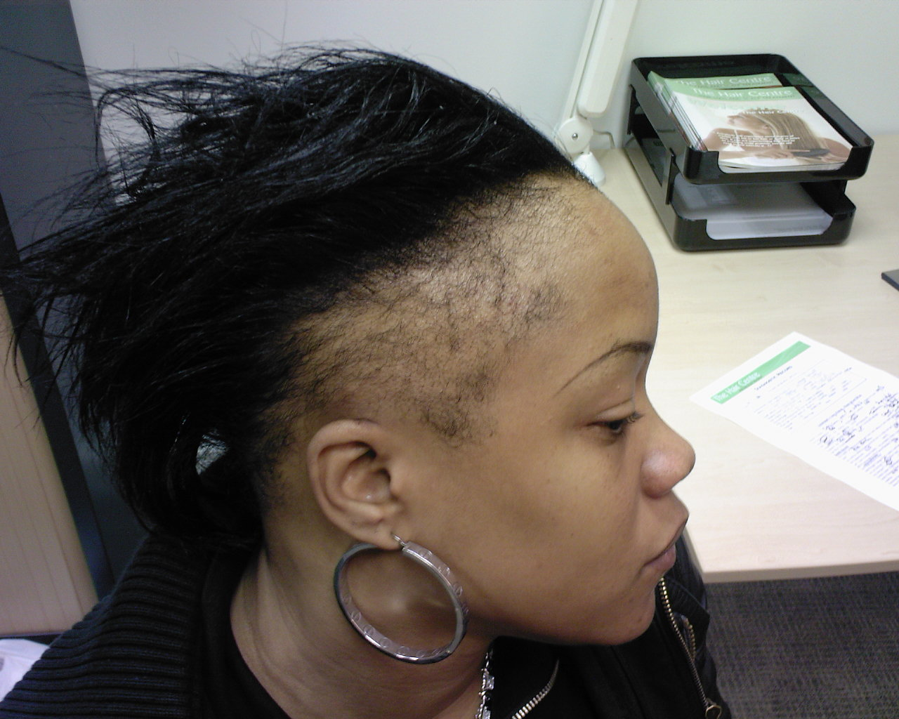 Dealing With Hair Loss as a Woman