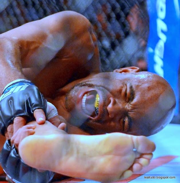 Anderson Silva Fratura Perna Quebrada Luta UFC 168 Fotos Foto - lealtudo