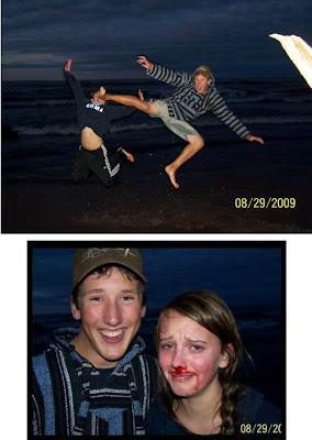 namorado arrebenta o nariz da namorada