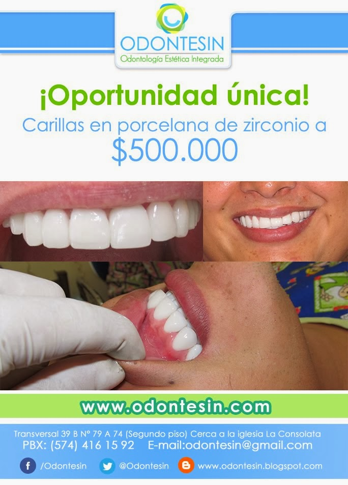 OPORTUNIDAD UNICA
