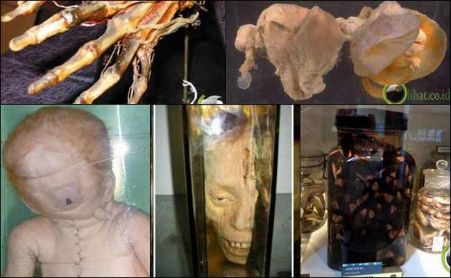 10 Benda Medis Menyeramkan yang masih ada di Museum