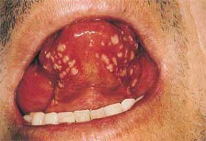 Recurrent Aphthous Ulcers4 Recurrent Aphthous Ulcers ppt