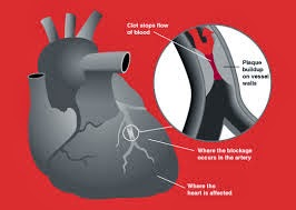 Heart Attack Symptoms Men