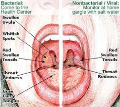 Nursing care in patients with acute tonsillitis
