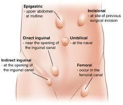 Hernia Bisa di Obati Tanpa Operasi Telah Terbukti