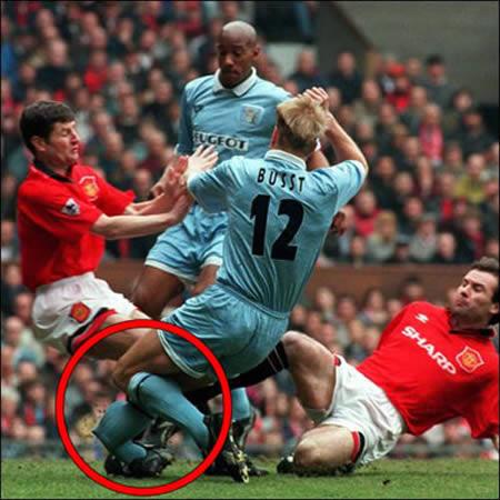 Worst Soccer Injuries