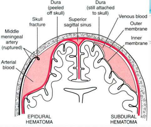 epidural-hematoma