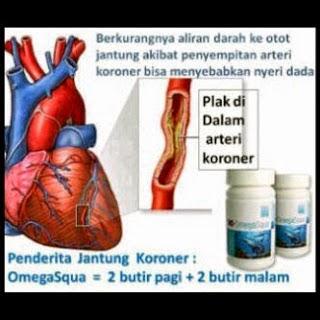 Awas Kini Penyakit Jantung Incar Usia Muda