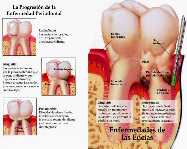 informacion enfermedad encia: