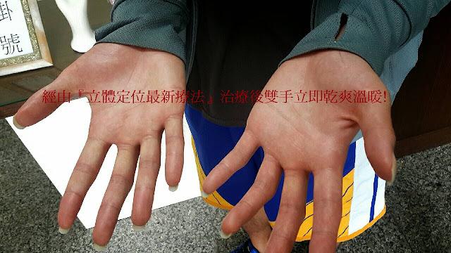 台南黃同學至高雄莊金順診所進行手汗治療