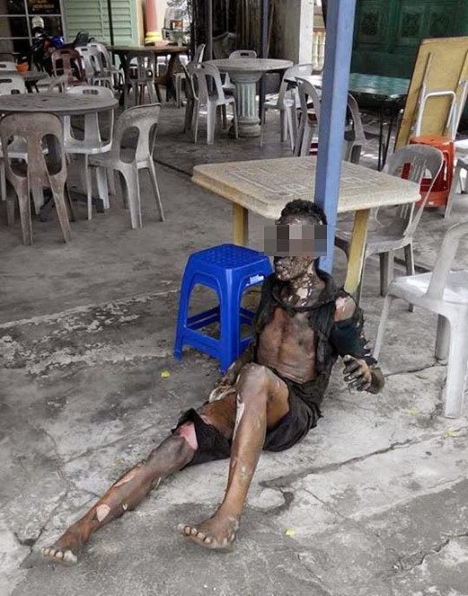 http://apahell.blogspot.com/2014/10/lelaki-melecur-80-akibat-mencuri-kabel.html