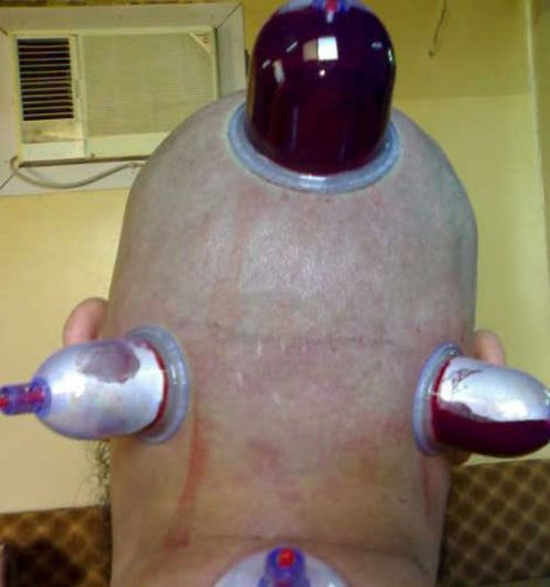 cupping on head for disorders