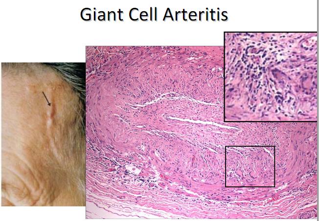 Image result for large vessel vasculitis