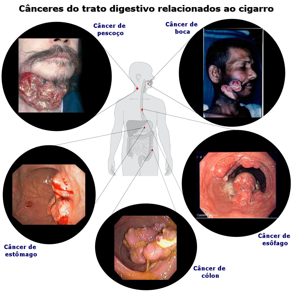 Doenças do cigarro - tumores gastrointestinais