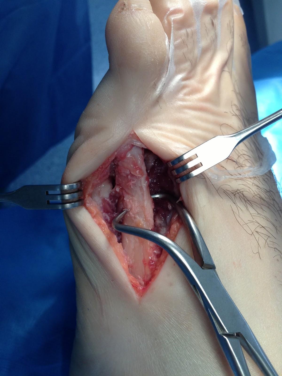 Cirug a ortop dica y traumatolog a avanzada dr ricardo for Cuarto y quinto metatarsiano