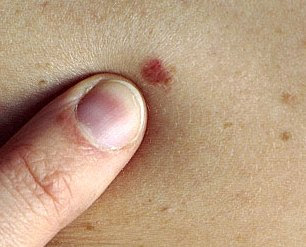 pictures of early skin cancer