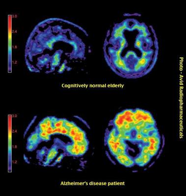 Hasil scan otak manusia