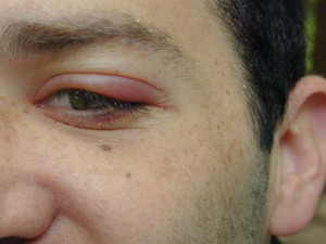 Staphylococcus Aureus, Bacteria, Infection, Complicated skin and skin structure infection, Methicillin-resistant Staphylococcus aureus, Infectious disease, Health, Conditions and Diseases