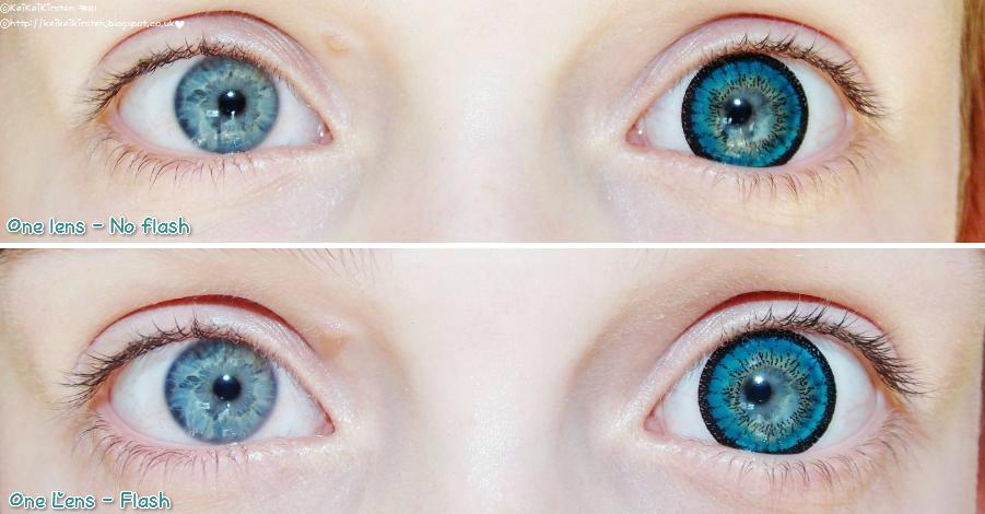 Limbal Ring Meaning