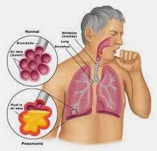 Ciri-ciri Orang Terkena Penyakit Paru-paru