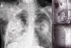 Pneumonia Diagnostics