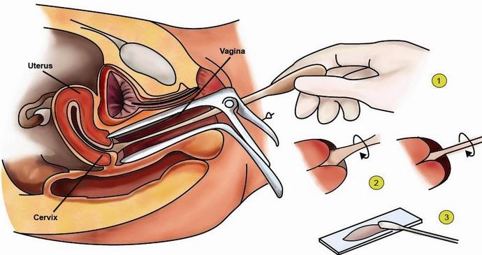 Pap Smear : Tahapan, Proses, dan Manfaatnya