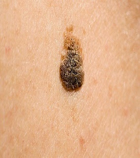 How to remove a mole what are the 3 main attributes of warts - Are warts contagious in a swimming pool ...