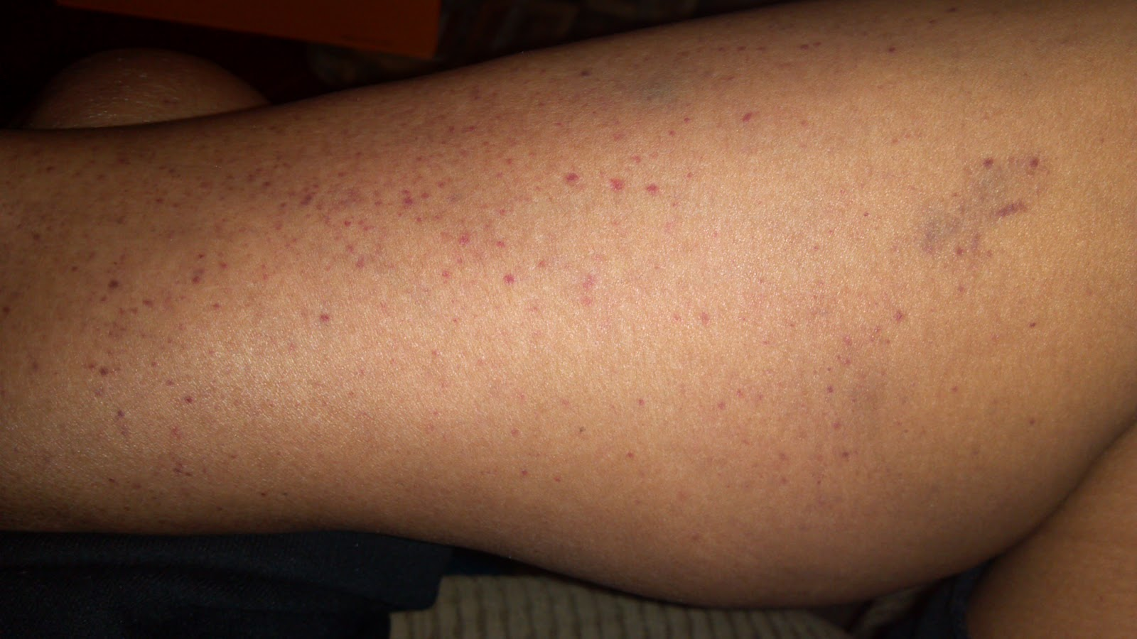 this is my left inner leg. The spots cover mainly below my knee and ...