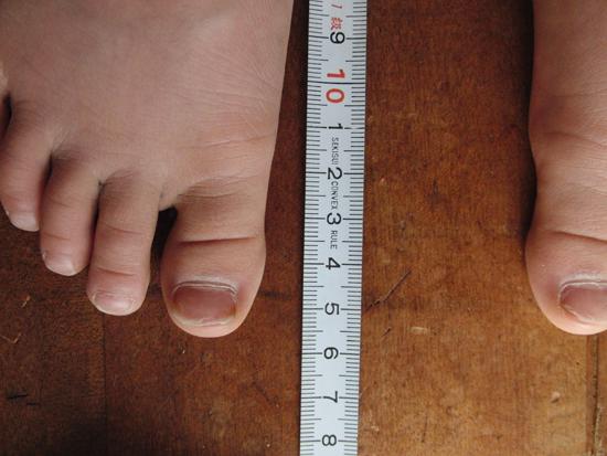 こどもの靴のサイズを測っています