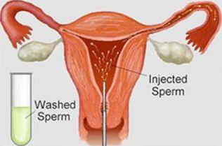 Iui Infertility Treatment Klinik Andrologi Rsud Dr Soetomo