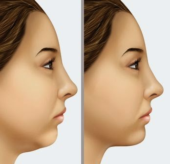 neck and jaw exercises