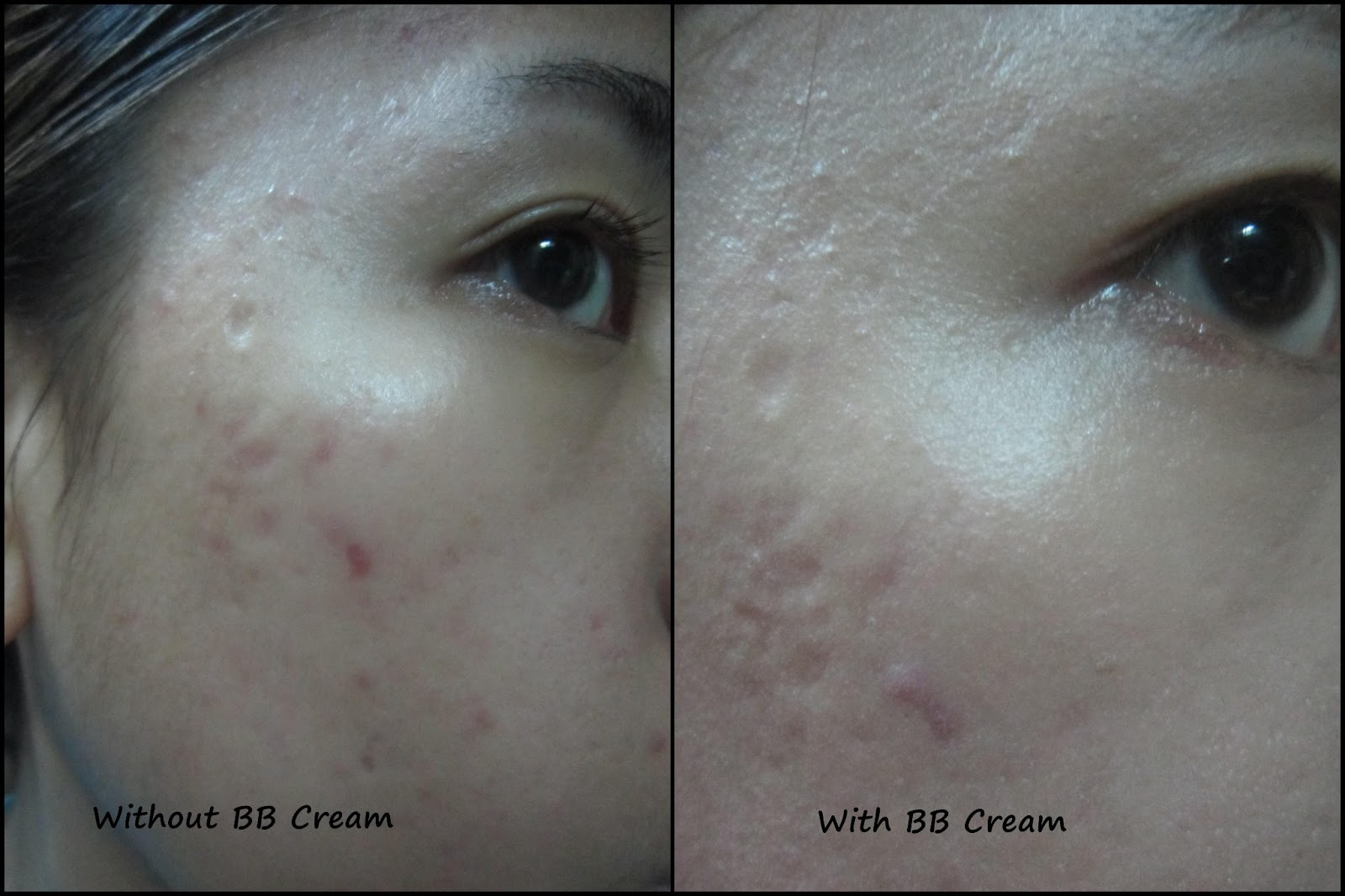 Fish oil fish oil keratosis pilaris for Fish oil cause acne