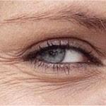 Las arrugas alrededor de los ojos la lucha los círculos oscuros