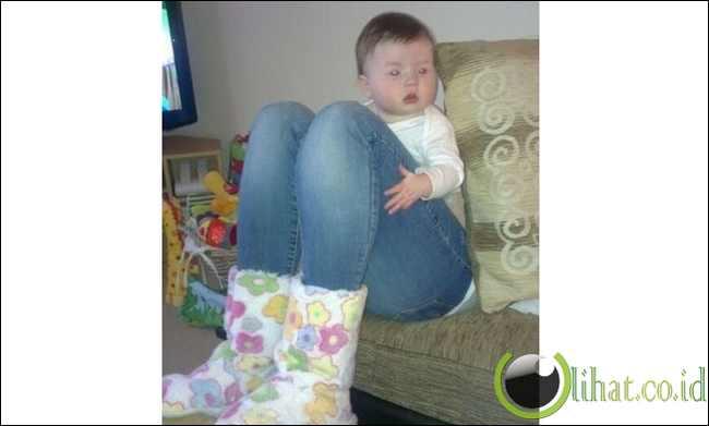 'Bayi Berkaki Besar'