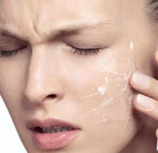 mengobati kulit mengelupas