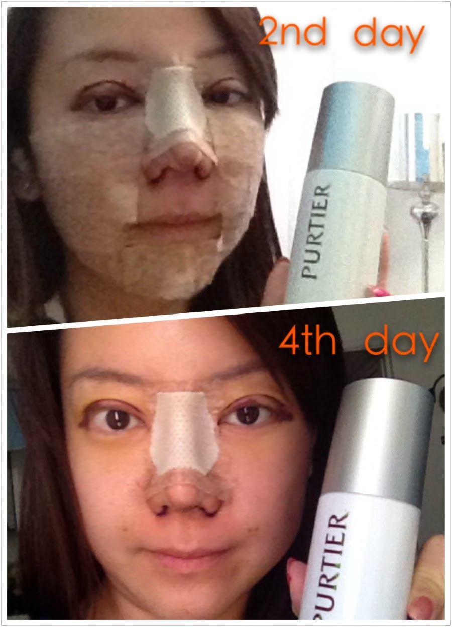 Check Out My Swelling Especially Around My Eyes, I Just Took Purtier For 2  Days Scroll Down To Read : How To Make Nose Unswell