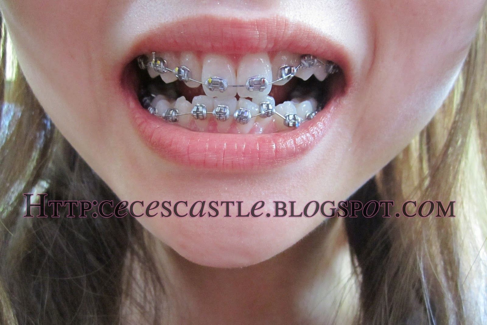 The gallery for --> Perfect Teeth After Braces Side View