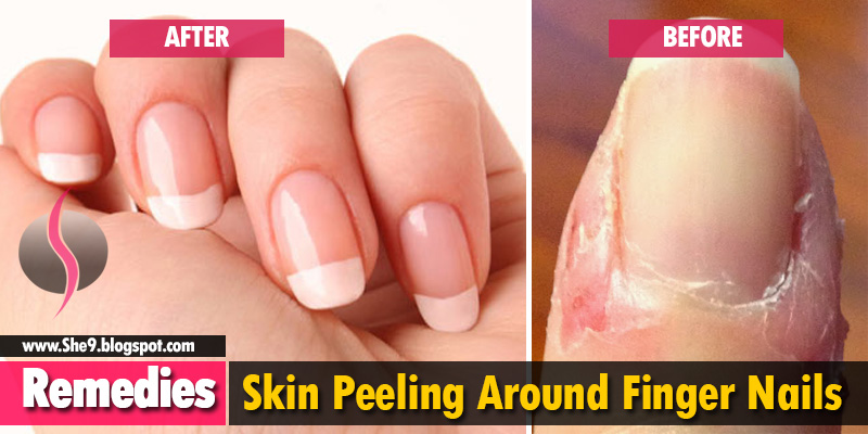 Best Way To Get Rid Of Ling Around Finger Nails