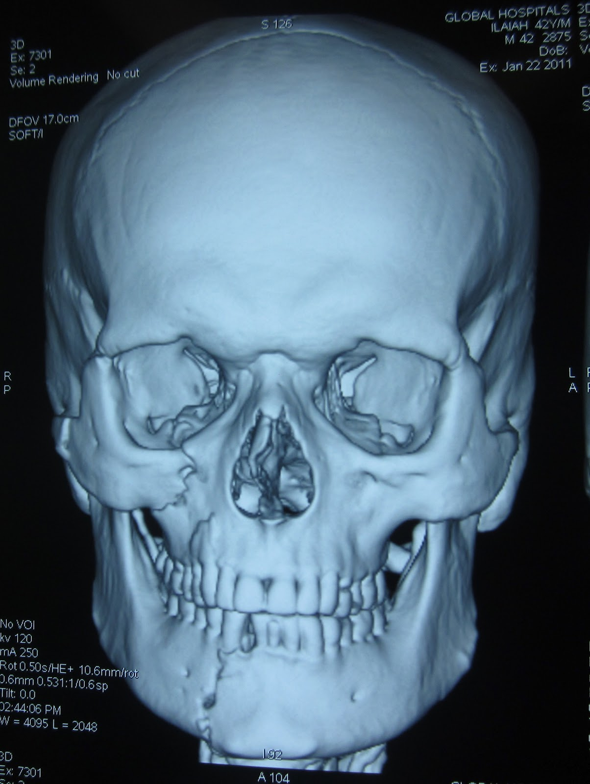 FRACTURE MANDIBLE + MINIMALLY DISPLACED FRACTURE ZYGOMA - ORIF OUTCOME-1.bp.blogspot.com